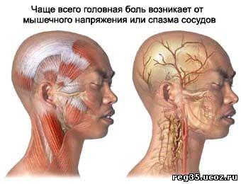 Что происходит при головной боли